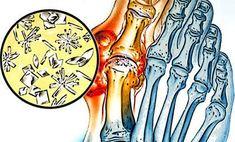 fájdalom a csípőízületekben és a fenékben a vállízület gyulladásának tünetei