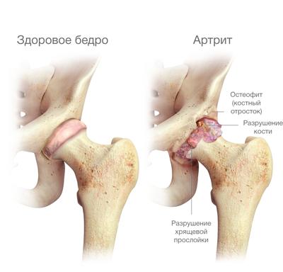 A csípőízület fájdalma a jobb oldalon: okai és kezelése