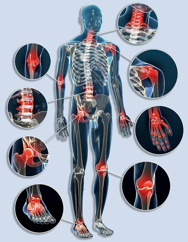 A fertőzéses artritisz
