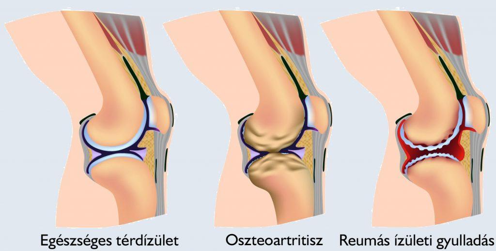 a térd artritisz kezelésének tünetei