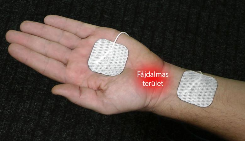 sárkezelés artrózis esetén