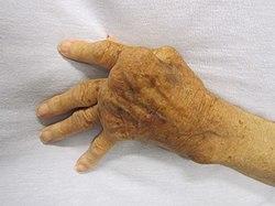 hatékonyan kezelni a rheumatoid arthritis
