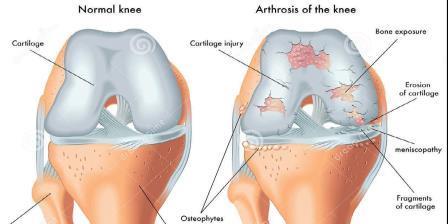 térd séta a térd artrózisával artrózisos kórházi kezelés
