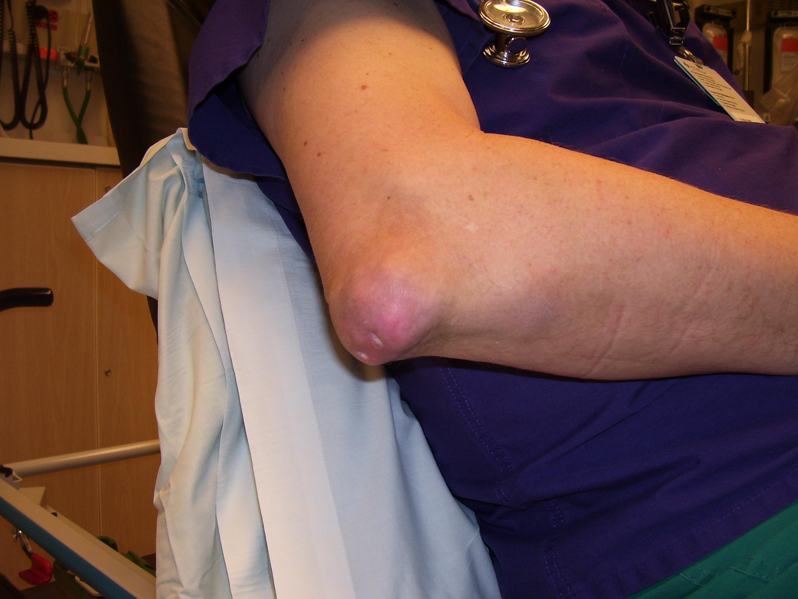a térdízület gyulladása, úgynevezett hogyan kezeljük a vállszalagok törését