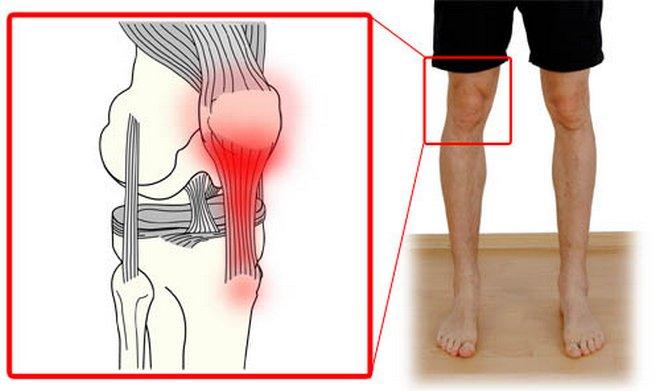 A tendinosis teljes áttekintése: okok, jellemző tünetek, kezelés és prognózis
