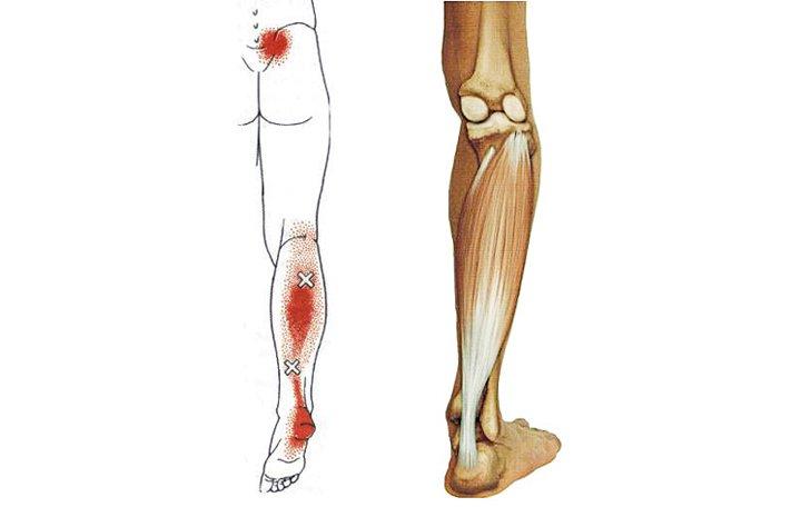 Osteoarthritis térd blokád felülvizsgálat - Arthritis July