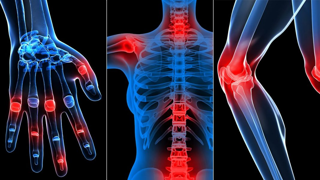 mit esznek ízületi fájdalmak miatt térdízületi gyulladás súlyos fájdalom