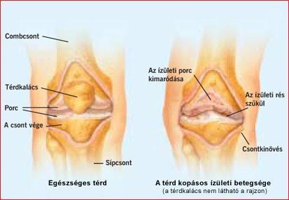 deformált vállízületi gyulladás