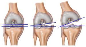 a kéz kis ízületeinek rheumatoid arthritis kezelése