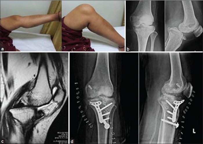 tartós fájdalom a láb ízületeiben