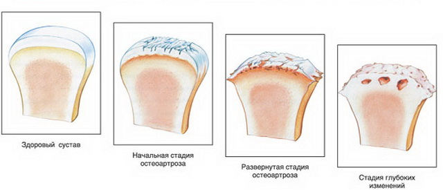 mi történik az ízületi artrózissal
