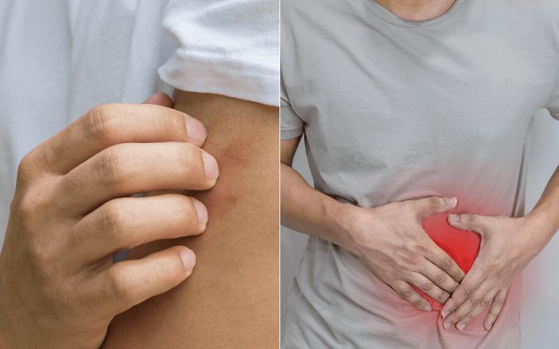 minden ízület miért fáj lábak kicsi ízületeinek deformáló artrózisa