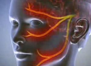 a térdízület artrózisának érzéstelenítése bioco izom és izület