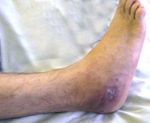 Dudor a lábán a hüvelykujj közelében - okok, tünetek, kezelés!