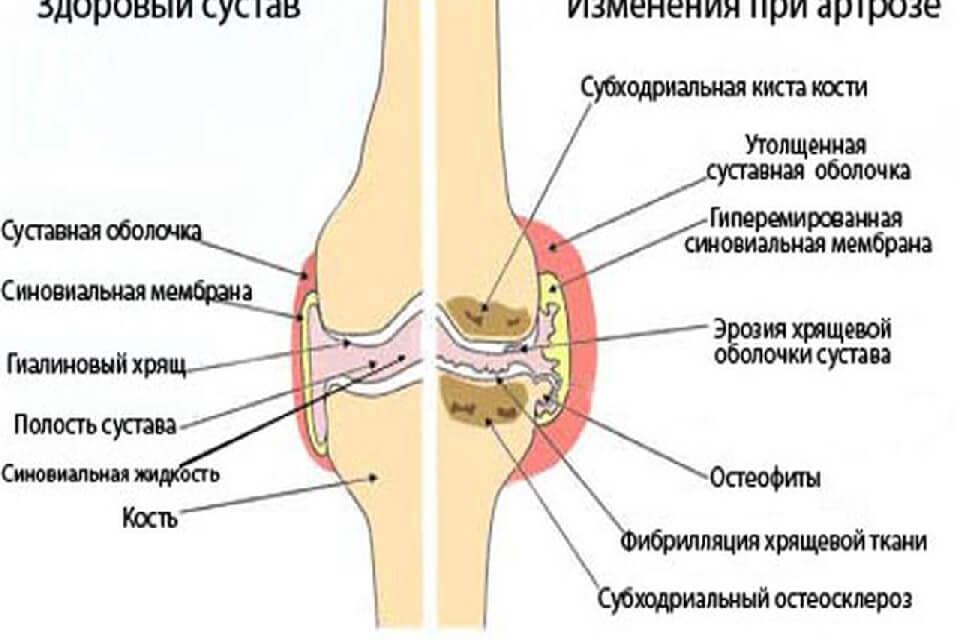 Mi az a reumatoid artritisz?