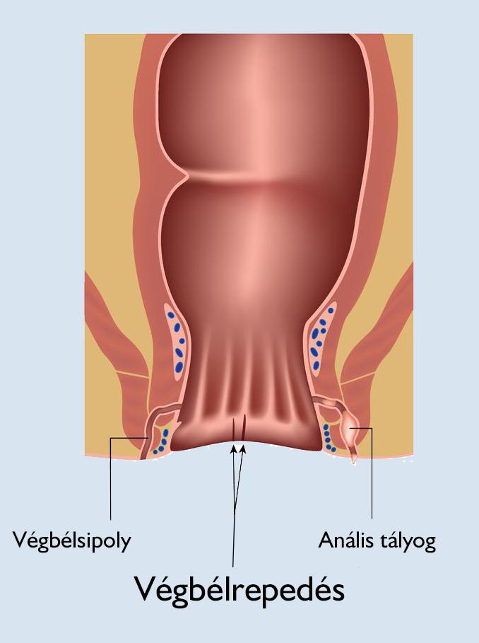 a térdízület artrózisának érzéstelenítése