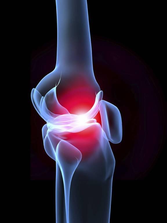 A könyök epicondylitisének okai, típusai, tünetei és kezelése - Myositis -