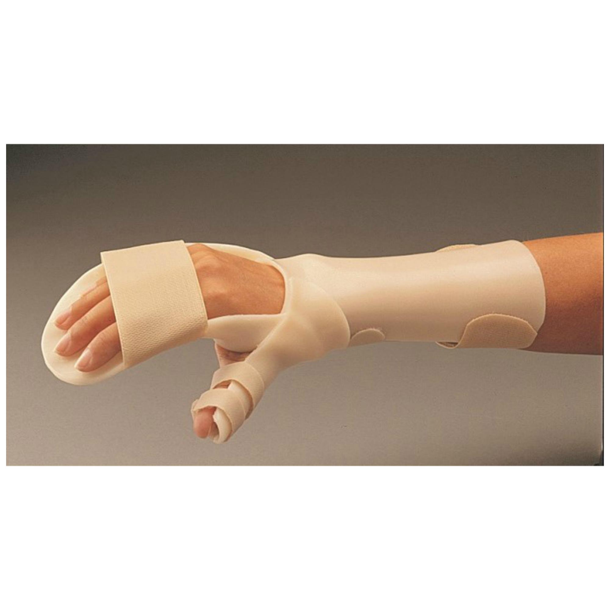 poszttraumás kéz kéz és annak kezelése