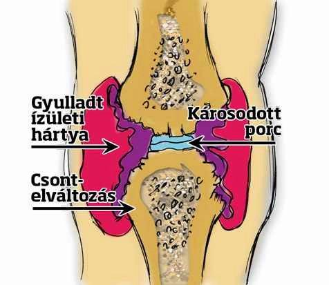csont ízületi gyulladás