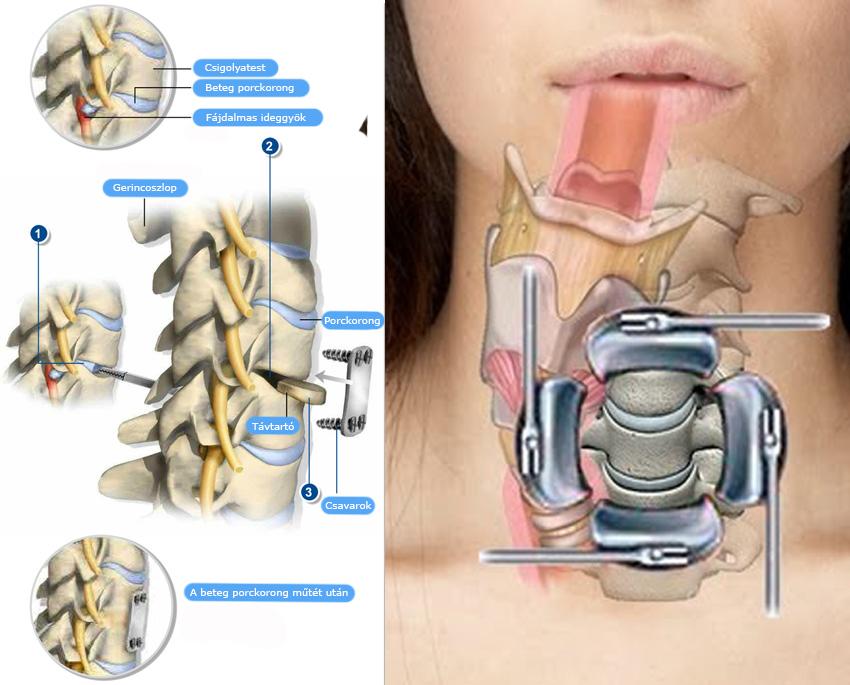 a nyaki gerinc feltárt artrózisának kezelése fórum a váll fájdalom kezelésére