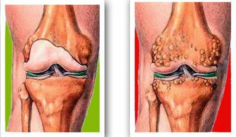 futópad a térd artrózisához