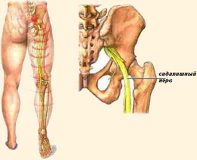 térdízületek gyulladásos kezelés miért a könyökízület izomfájdalma