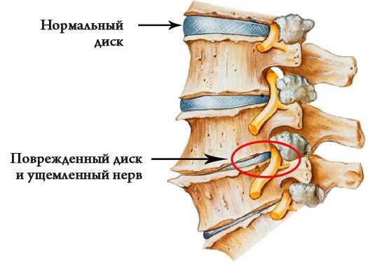fájdalom az ágyéki térségben és a csípőízületben