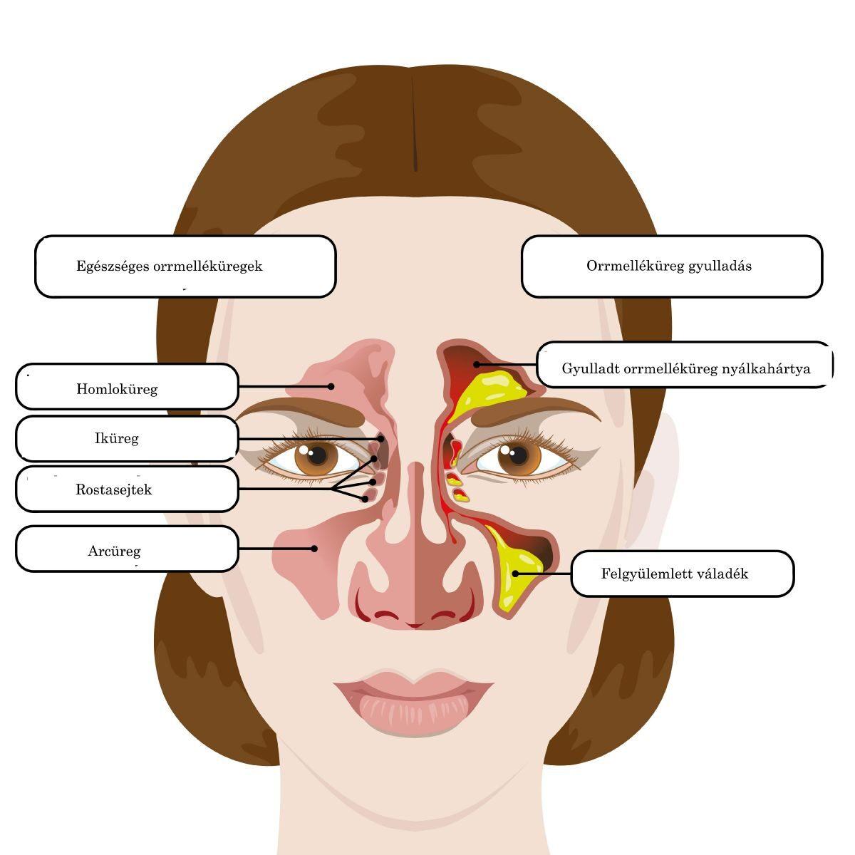 fájó ízület az orrban könyök fájdalom ujj zsibbadás