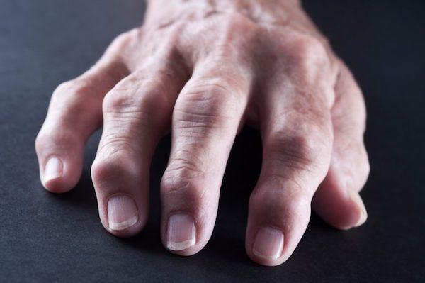 ízületi fájdalom enyhítése ízületi fájdalmaktól