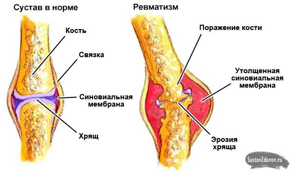fáj a középső ujj a lábízületben hogyan enyhíthető a csípőízületek gyulladása