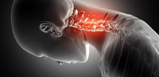 Csontritkulás: milyen tünetei vannak?