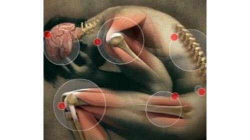 carpalis alagút szindróma kezelése