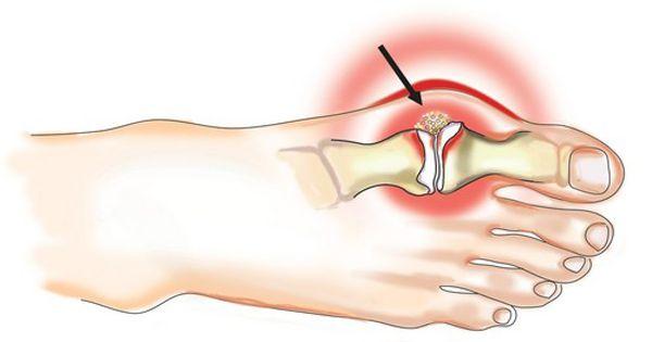 fájdalom a csípőízületek betegségeiben