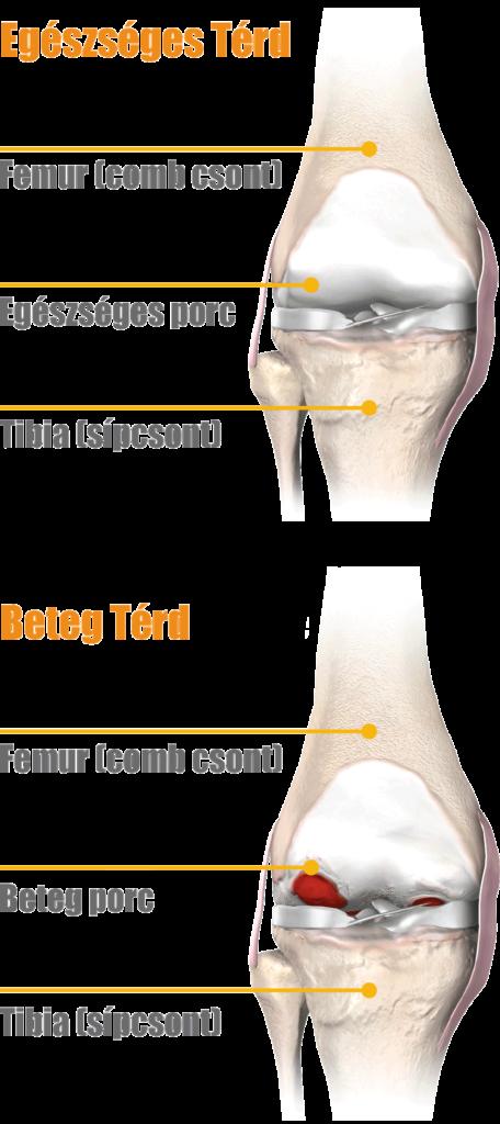térdízület kezelési korai artrózisa csípőpusztító betegség