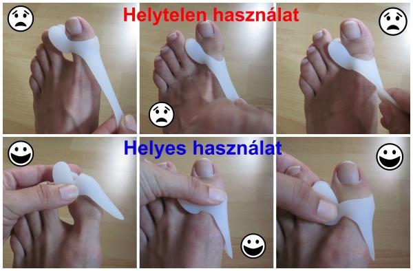 teraflex kapszula ízületi betegségek kezelésére gyulladás és fájdalom az ujjak ízületeiben