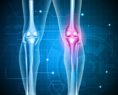 könyökízület epicondylitis kezelése könyök sport sérülései