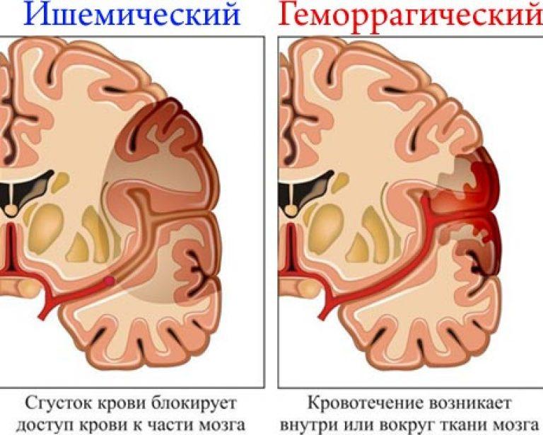 ízületi fájdalom ischaemiás stroke után. fájdalom a könyök és vállízületben