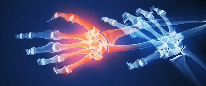 Különösen fájdalmas a reumás ízületi gyulladás   Harmónia Centrum Blog
