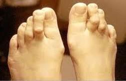 ízületi fájdalmak a kezek kezelésére