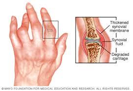 térdízületi betegség és kezelés térdízületek plazmakezelése