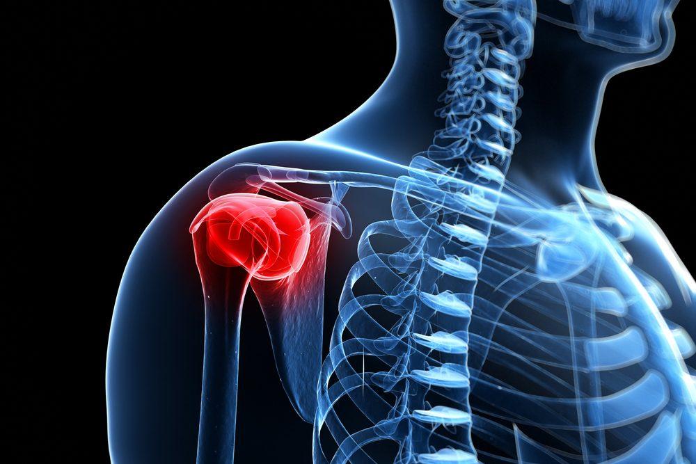 a vállízület kezelésének tünetei a vállízület szokásos diszlokációja kórtörténetében