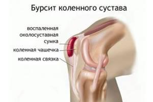 ízületi fájdalom a láb felső része ízületi betegség, osteoarthrosis