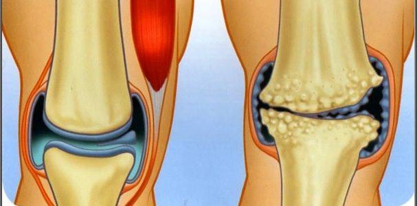 ízületi gyulladás 1-2 fokos kezelés lüktető térdfájdalom