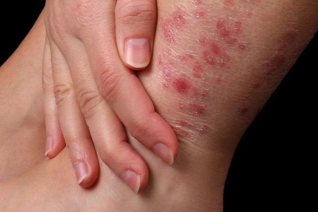 psoriasis artrosis kezelése kámfor olaj ízületi gyulladásokhoz