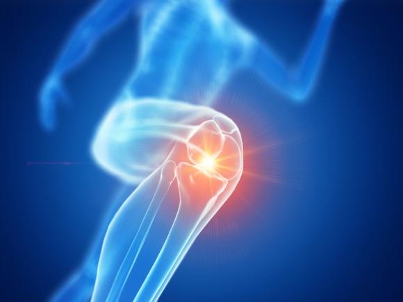 artrózisos fokú kezelés térdfájás okai