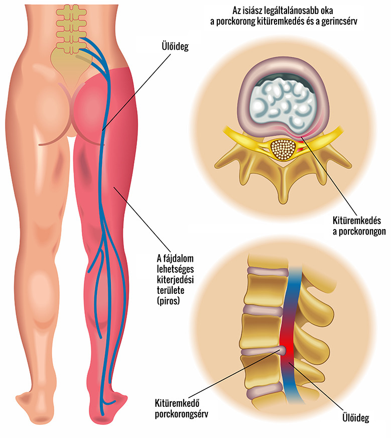 Csípőkopás - Mozgásszervi megbetegedések