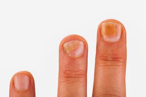 Papilloma az ujjak kenőcsén, Miért illeszkedik az ujjak és a tenyér bőréhez?