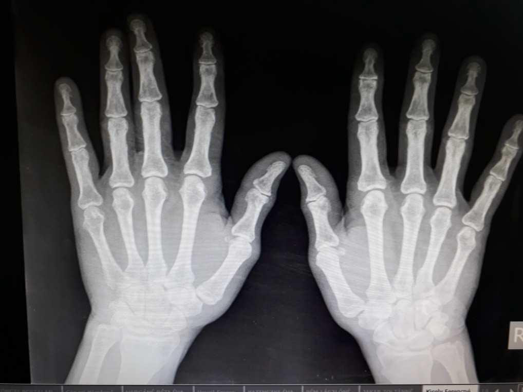 az artritisz arthritis kezelésének modern módszerei