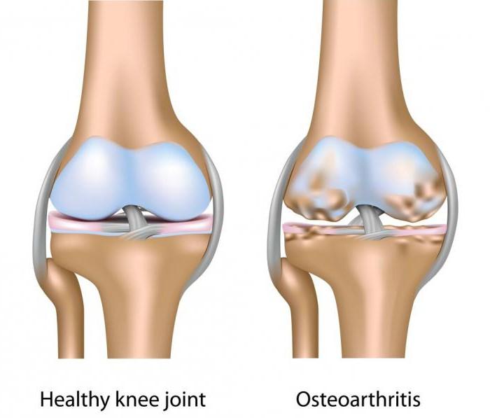 a bal vállízület osteoarthrosisának kezelése a térd artrózisának legújabb kezelése