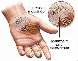 csípőízületi diagnózis kezelése